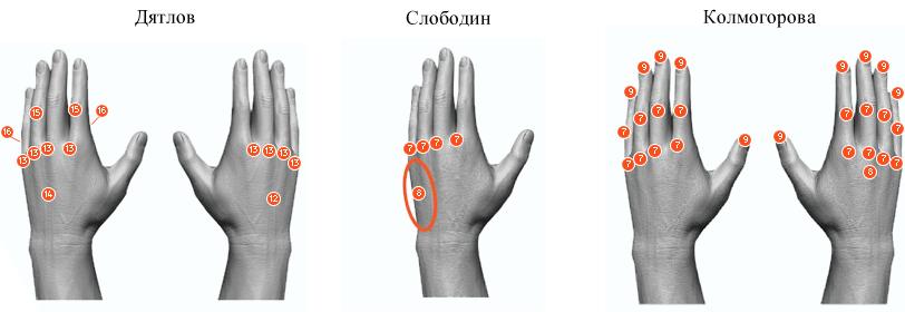 Dyatlov, Slobodin and Kolmogorova hand injuries