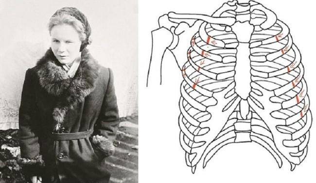 Lyudmila Dubinina fractured ribs