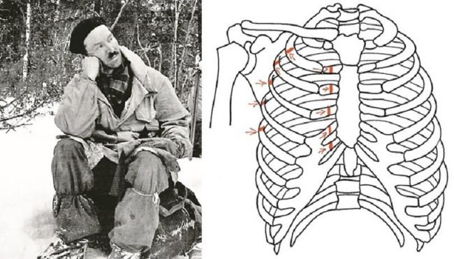 Semyon Zolotaryov fractured ribs